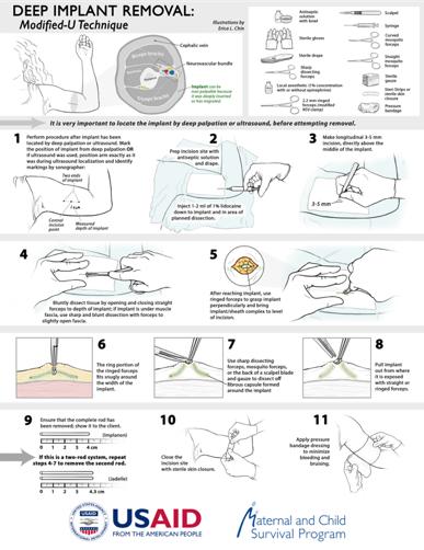 "Modified ""U-Technique"" Infographic"